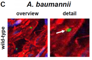 Anhaften des Bakteriums A. baumannii (grün) an Endothelzellen einer Nabelschnurvene. Copyright: American Society of Microbiolgy