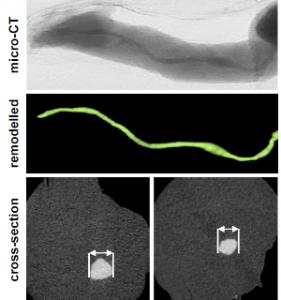 Mikro-Computer-Tomographie und Doppler-Ultraschallaufnahme einer Nabelschnurvene. Copyright: American Society of Microbiolgy