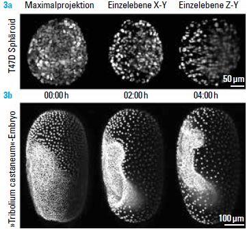 © 3a von Smyrek, Schmitz, Hötte, 3b aus A: Smyrek, Stelzer EHK et al. (2015) Live imaging of Tribolium castaneum embryonic development using light-sheet-based fluorescence microscopy, Nature Protocols 10:1486-1507)