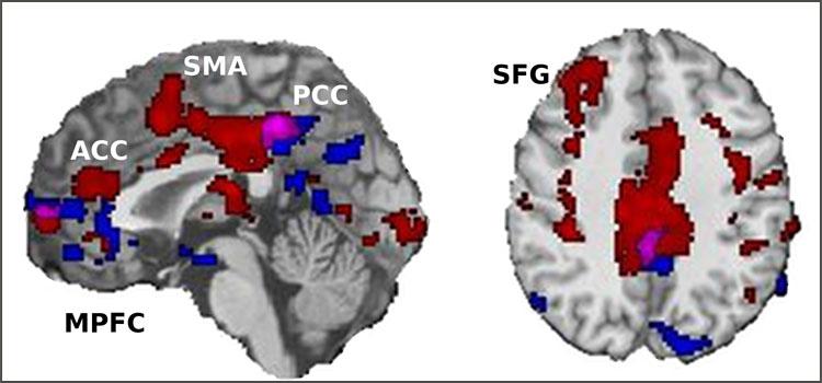 Das Bild zeigt fMRT-Aufnahmen von Hirnarealen, in denen ein variableres Aktivierungsmuster zu einer besseren Leistung führt. Bild: D. Armbruster-Genç