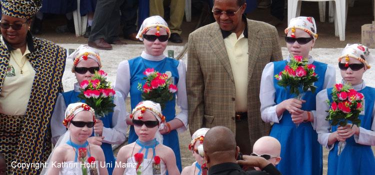 """Tansanias Präsident Jakaya Kikwete mit Ehefrau und Albino-Kindern am """"International Albinism Awareness Day"""" 2015 in Arusha: In Tansania und anderen Ländern Afrikas werden Personen mit Albinismus oft diskriminiert, es kommt auch vor, dass sogar ihre Klassifikation als Menschen infrage gestellt wird. In einigen Ländern des östlichen und südlichen Afrika fallen Menschen mit Albinismus grausamen Verbrechen zum Opfer, da ihren Körperteilen magische Kräfte zugeschrieben werden und diese einen hohen Marktwert erzielen. Die Regierungen der betroffenen Länder versuchen mit Aufklärungskampagnen gegen diese Praktiken und Vorstellungen anzugehen. Ein Projekt der Universität Mainz untersucht die historisch und sozial kontingente Kategorisierung von Menschen mit Albinismus."""