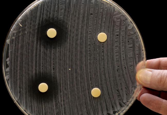Test für die Wirkung von Antibiotika: die mit Antibiotikum getränkten Testplättchen zeigen gegen die Bakterienkultur eine Aufklarungszone (links), in der keine Bakterien wachsen. Unwirksame zeigen dies nicht (rechts).