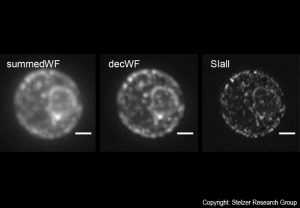 Live yeast cell embedded in agarose. From left to right: conventional fluorescence, conventionally treated and with csiLSFM. The bar is 1 µm wide.