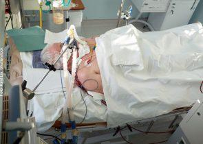 COVID-19-Patient unter Beatmung: Der internationale Forschungsverbund CARE unter Beteiligung der Goethe-Universität sucht nach neuen Therapien.